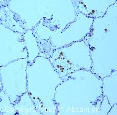Immunohistochemistry (Formalin/PFA-fixed paraffin-embedded sections) - Anti-MRP1 antibody [MRPr1] (ab3368)