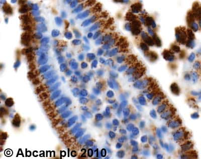 Immunohistochemistry (Formalin/PFA-fixed paraffin-embedded sections) - Anti-PMP70 antibody (ab3421)