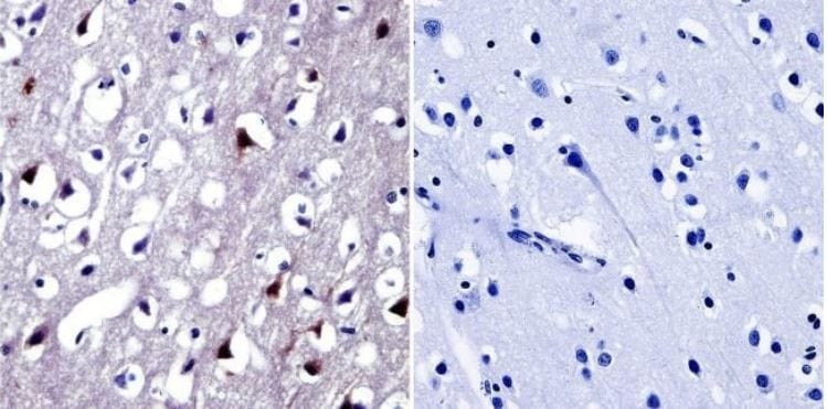 Immunohistochemistry (Formalin/PFA-fixed paraffin-embedded sections) - Anti-NFAT5 antibody (ab3446)