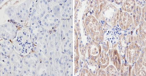 Immunohistochemistry (Formalin/PFA-fixed paraffin-embedded sections) - Anti-Endostatin/COL18A1 antibody (ab3453)