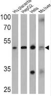 Western blot - Anti-Adenosine Receptor A2a antibody (ab3461)