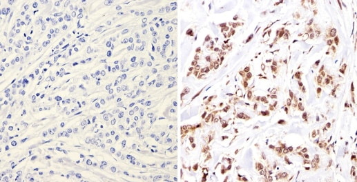 Immunohistochemistry (Formalin/PFA-fixed paraffin-embedded sections) - Anti-Nuclear Receptor Corepressor NCoR antibody - ChIP Grade (ab3482)