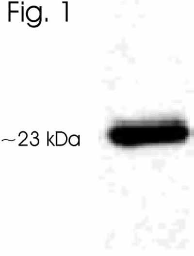 Western blot - Anti-AANAT antibody (ab3506)