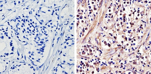 Immunohistochemistry (Formalin/PFA-fixed paraffin-embedded sections) - Anti-Androgen Receptor antibody - ChIP Grade (ab3509)