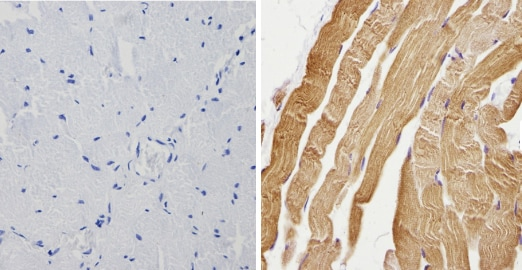 Immunohistochemistry (Formalin/PFA-fixed paraffin-embedded sections) - Anti-Calsequestrin antibody (ab3516)