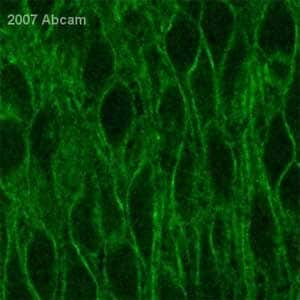 Immunohistochemistry (Formalin/PFA-fixed paraffin-embedded sections) - Anti-Calcium Pump PMCA3 ATPase antibody (ab3530)