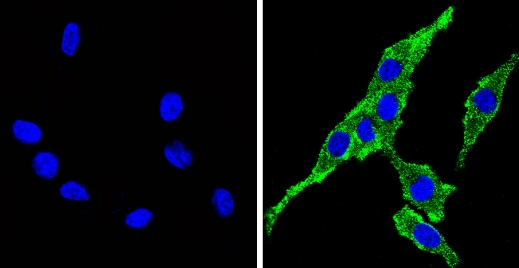 Immunocytochemistry/ Immunofluorescence - Anti-Cytochrome P450 4A/CYP4A11 antibody (ab3573)