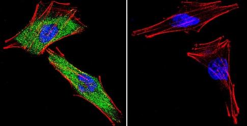 Immunocytochemistry/ Immunofluorescence - Anti-Glucocorticoid Receptor antibody - ChIP Grade (ab3579)