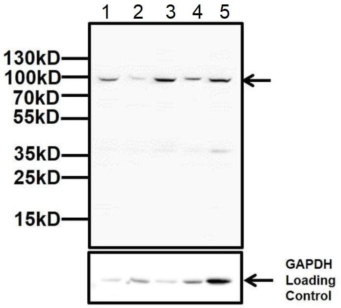 Western blot - Anti-Glucocorticoid Receptor antibody (ab3579)