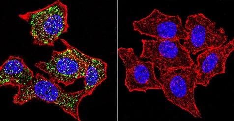 Immunocytochemistry/ Immunofluorescence - Anti-Glucocorticoid Receptor alpha antibody - ChIP Grade (ab3580)