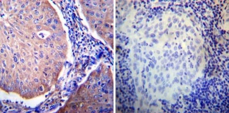 Immunohistochemistry (Formalin/PFA-fixed paraffin-embedded sections) - Anti-Glucocorticoid Receptor alpha antibody (ab3580)