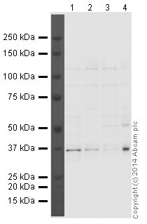 Western blot - Anti-Aurora B antibody [mAbcam 3609] (ab3609)