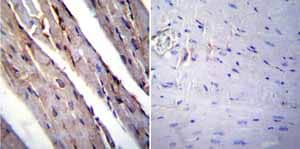 Immunohistochemistry (Formalin/PFA-fixed paraffin-embedded sections) - Anti-RAGE antibody (ab3611)