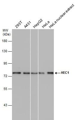 Western blot - Anti-HEC1/HEC antibody [9G3] (ab3613)