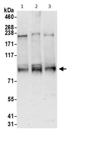 Western blot - Anti-SERCA2 ATPase antibody (ab3625)