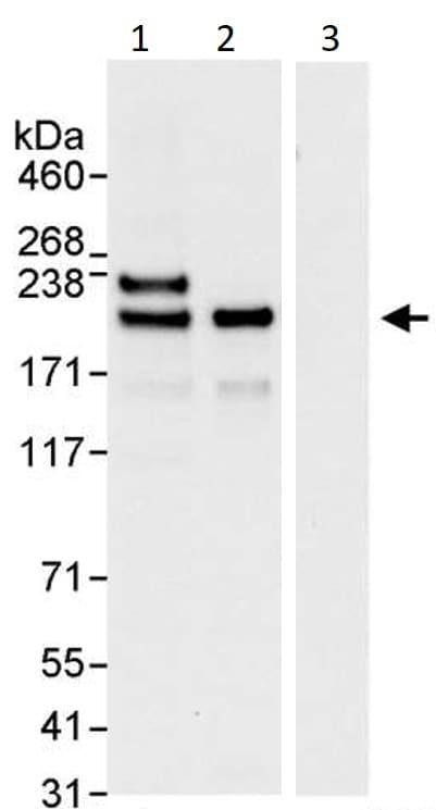 Immunoprecipitation - Anti-KIF14 antibody (ab3746)