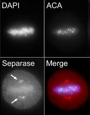 Immunocytochemistry/ Immunofluorescence - Anti-Separase antibody (ab3762)