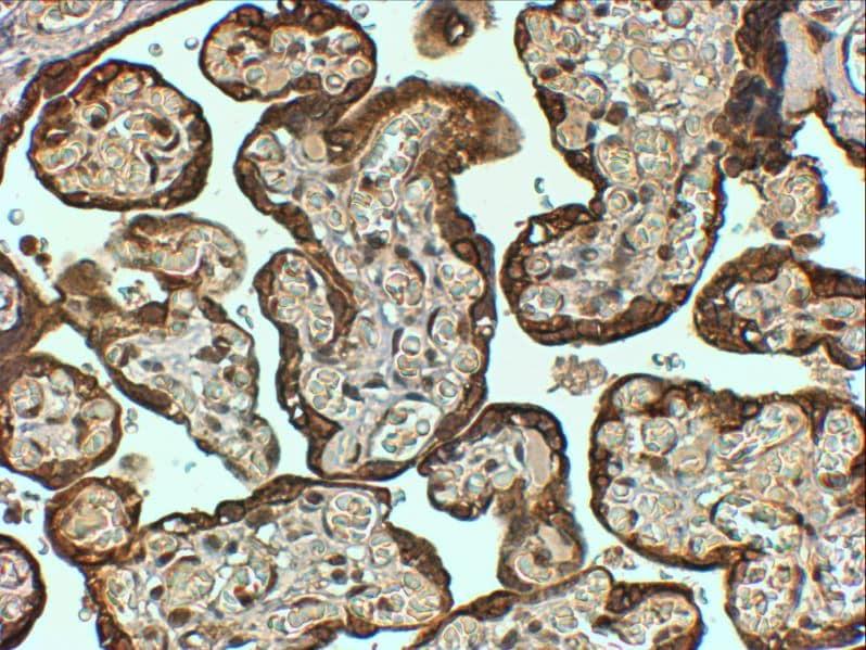 Immunohistochemistry (Formalin/PFA-fixed paraffin-embedded sections) - Anti-PAI1 antibody (ab31280)