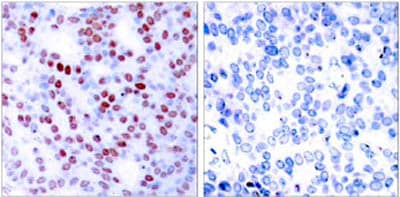 Immunohistochemistry (Formalin/PFA-fixed paraffin-embedded sections) - Anti-c-Jun antibody - ChIP Grade (ab31419)