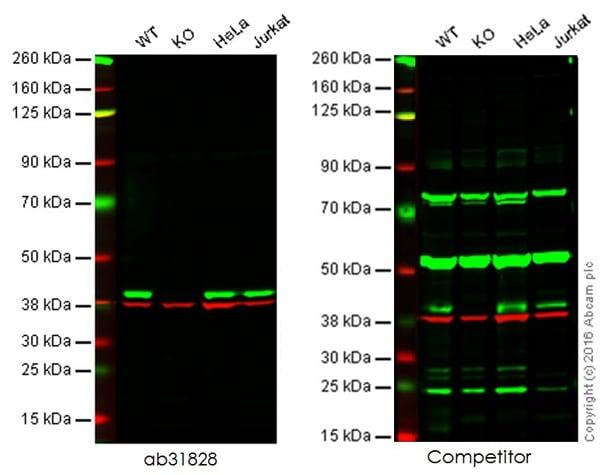Western blot - Anti-p38 antibody [M138] (ab31828)