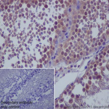 Immunohistochemistry (Formalin/PFA-fixed paraffin-embedded sections) - Anti-mTOR antibody [Y391] (ab32028)
