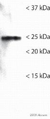 Western blot - Anti-GRB2 antibody [Y237] (ab32037)