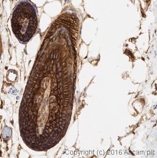 Immunohistochemistry (Formalin/PFA-fixed paraffin-embedded sections) - Anti-EGFR antibody [E235] (ab32077)