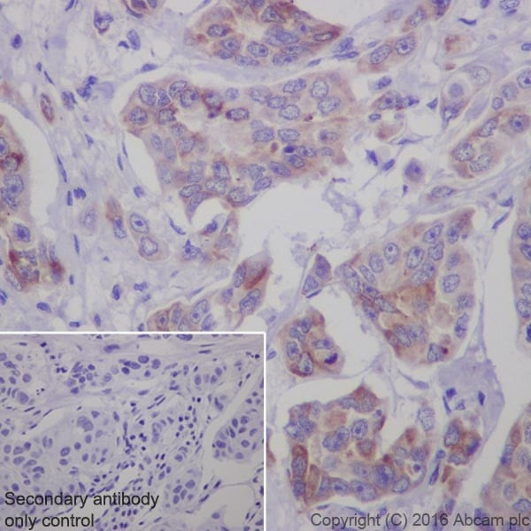 Immunohistochemistry (Formalin/PFA-fixed paraffin-embedded sections) - Anti-Bim antibody [Y36] (ab32158)