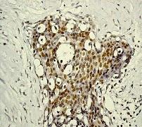 Immunohistochemistry (Formalin/PFA-fixed paraffin-embedded sections) - Anti-STAT5 (phospho Y694) antibody [E208] (ab32364)