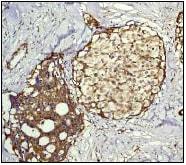 Immunohistochemistry (Formalin/PFA-fixed paraffin-embedded sections) - Anti-RAP1GAP antibody [Y134] (ab32373)