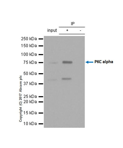 Immunoprecipitation - Anti-PKC alpha antibody [Y124] (ab32376)
