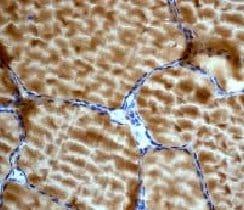 Immunohistochemistry (Formalin/PFA-fixed paraffin-embedded sections) - Anti-AMPK gamma 1 antibody [Y307] (ab32382)