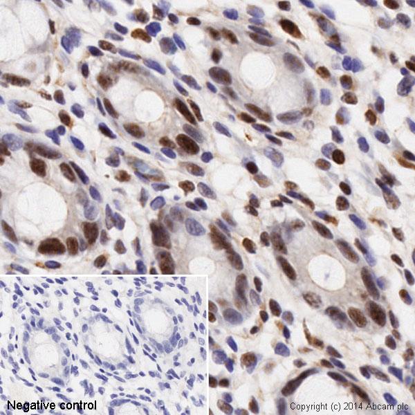 Immunohistochemistry (Formalin/PFA-fixed paraffin-embedded sections) - Anti-Histone H3 (phospho S28) antibody [E191] - ChIP Grade (ab32388)