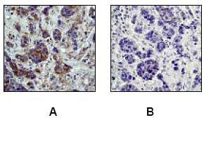 Immunohistochemistry (Formalin/PFA-fixed paraffin-embedded sections) - Anti-PKA R2/PKR2 (phospho S99) antibody [E151] (ab32390)
