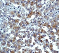 Immunohistochemistry (Formalin/PFA-fixed paraffin-embedded sections) - Anti-CCR3 antibody [Y31] (ab32512)