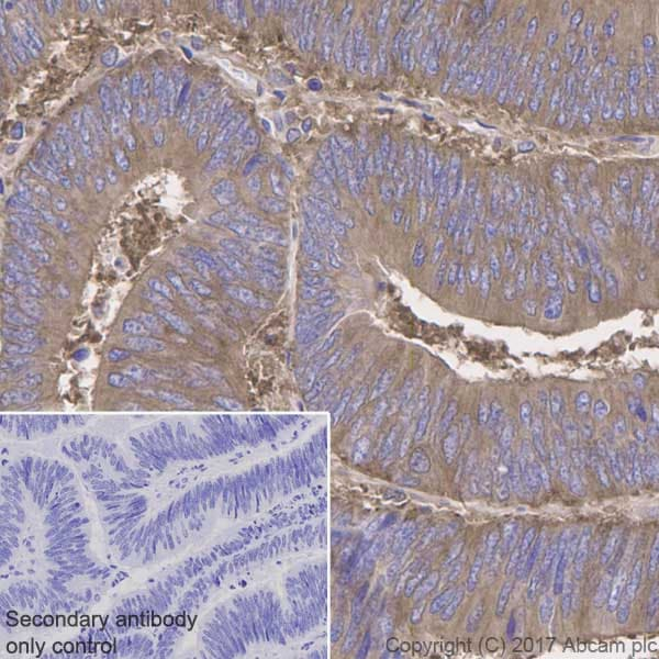Immunohistochemistry (Formalin/PFA-fixed paraffin-embedded sections) - Anti-NF-kB p65 antibody [E379] (ab32536)