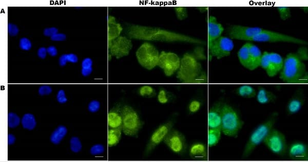 Immunocytochemistry/ Immunofluorescence - Anti-NF-kB p65 antibody [E379] (ab32536)