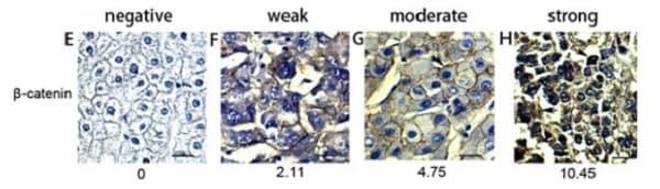 Immunohistochemistry (Formalin/PFA-fixed paraffin-embedded sections) - Anti-beta Catenin antibody [E247] (ab32572)
