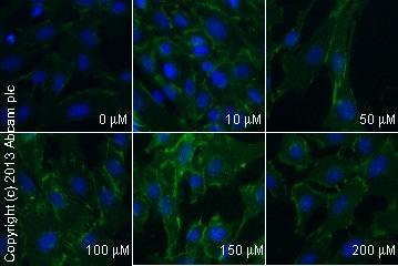 Immunocytochemistry/ Immunofluorescence - Anti-beta Catenin antibody [E247] (ab32572)