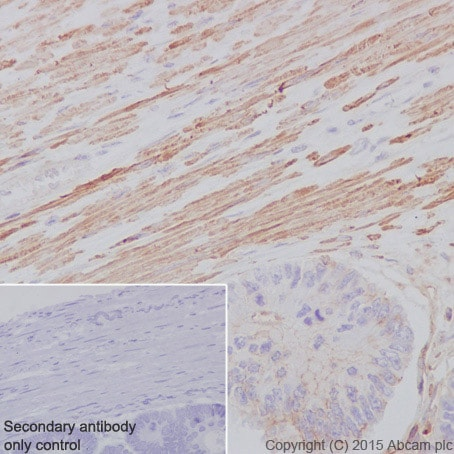 Immunohistochemistry (Formalin/PFA-fixed paraffin-embedded sections) - Anti-alpha smooth muscle Actin antibody [E184] (ab32575)