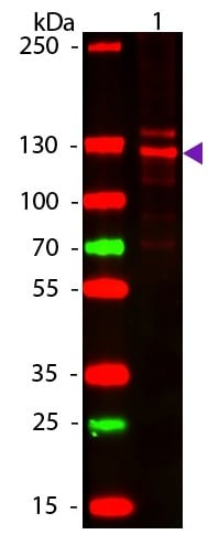 Western blot - Anti-Collagen I antibody (ab34710)