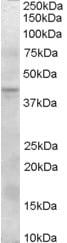 Western blot - Anti-SERPINI2 antibody (ab36169)