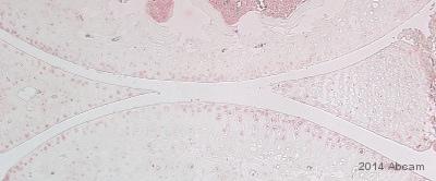 Immunohistochemistry (Formalin/PFA-fixed paraffin-embedded sections) - Anti-MMP13 antibody (ab39012)