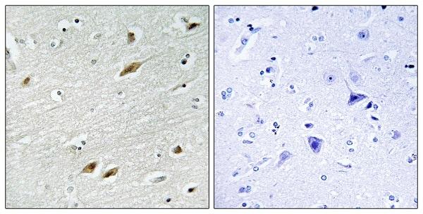 Immunohistochemistry (Formalin/PFA-fixed paraffin-embedded sections) - Anti-FOXO1A antibody - ChIP Grade (ab39670)