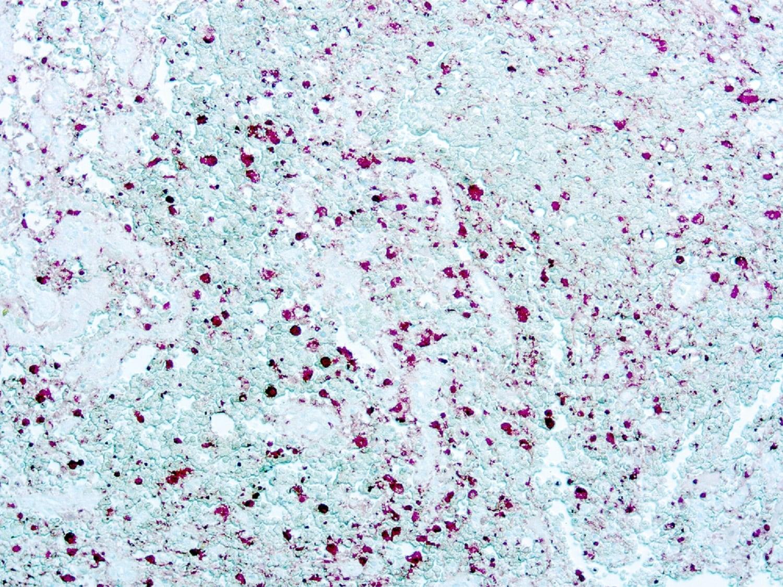 Immunohistochemistry (Formalin/PFA-fixed paraffin-embedded sections) - Anti-S100 antibody [4C4.9] (ab4066)