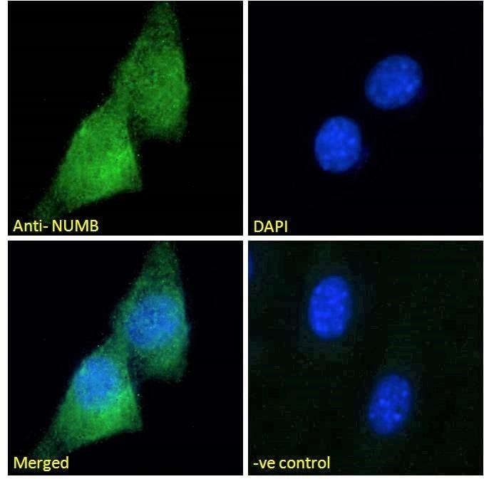 Immunocytochemistry/ Immunofluorescence - Anti-NUMB antibody (ab4147)