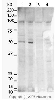 Western blot - Anti-TRF2 antibody (ab4182)