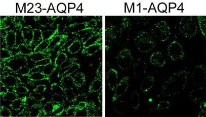 Immunocytochemistry - FITC Anti-C1q antibody (ab4223)