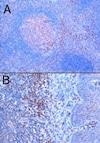 Immunohistochemistry (Formalin/PFA-fixed paraffin-embedded sections) - Anti-TRIM5 alpha antibody (ab4389)