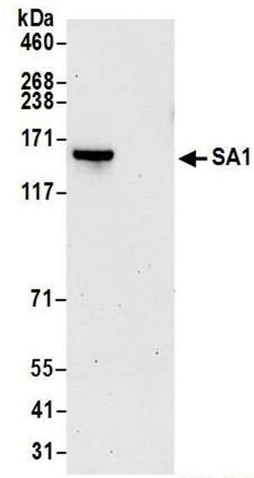 Immunoprecipitation - Anti-SA1 antibody (ab4457)